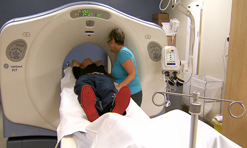 CT Scans for Smokers